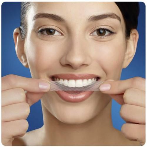 cách làm trắng răng bị vàng