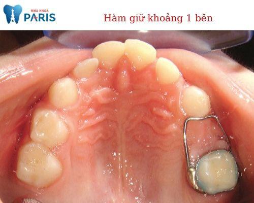 Sau khi nhổ răng hàm bị sâu, trẻ nên sử dụng hàm giữ khoảng
