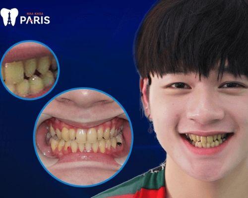 làm răng có ảnh hưởng phong thủy - Ca sĩ Leo trước khi bọc sứ