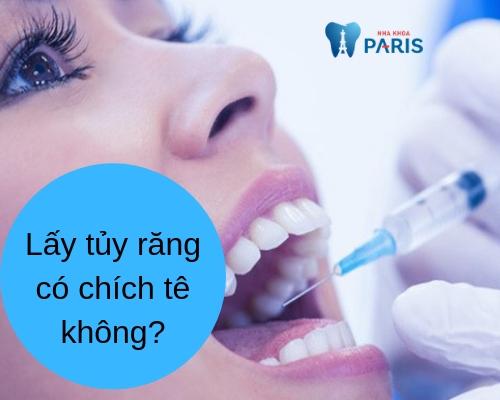 Lấy tủy răng có chích thuốc tê không?