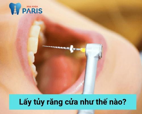 lấy tủy răng cửa như thế nào