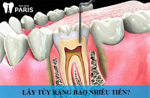 Lấy tủy răng bao nhiêu tiền