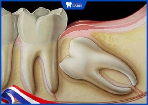 nhổ răng khôn sau 1 tuần vẫn còn đau