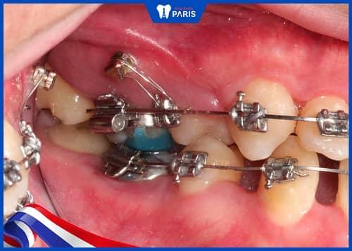 nhổ răng hàm để chỉnh nha