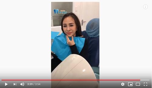 nhổ răng số khôn có đau không video