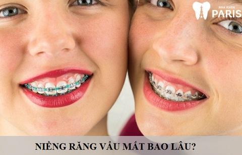 niềng răng vẩu mất bao lâu