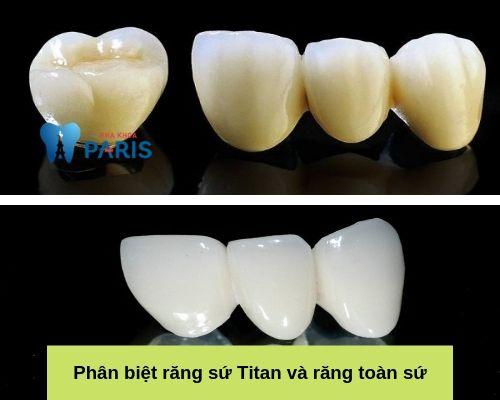Phân biệt răng sứ Titan và răng toàn sứ