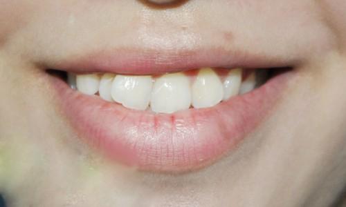 Răng cửa lệch nhân trung khiến hàm răng mất tính thẩm mỹ