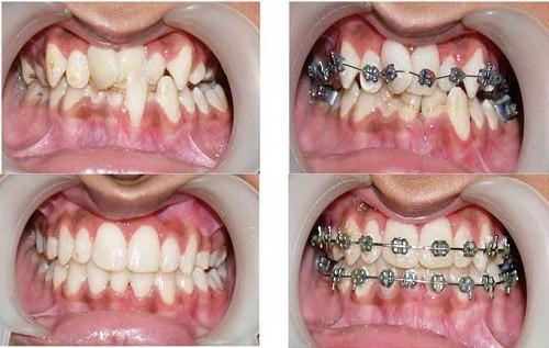 Niềng răng bị lệch nhân trung