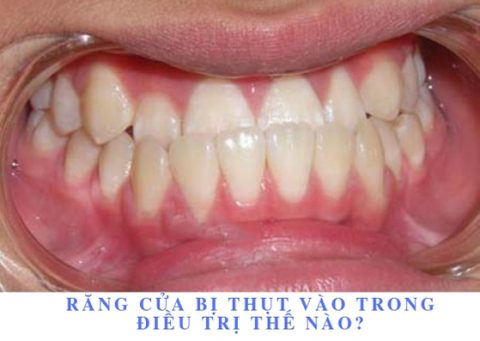 Răng cửa bị thụt vào trong điều trị như thế nào?