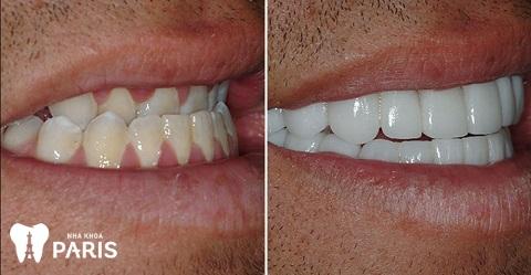 Bọc răng sứ giúp cải thiệt màu sắc răng và giúp khắc phục răng móm