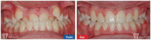 Niềng răng giúp điều trị những ca răng cửa bị thụt vào trong từ dễ đến khó.