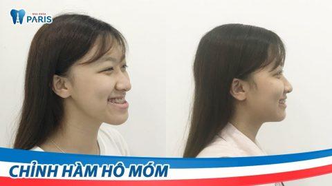 Phẫu thật chỉnh hàm móm cải thiện được hàm răng và khuôn mặt của khách hàng.