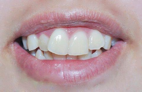 răng cửa to và lệch