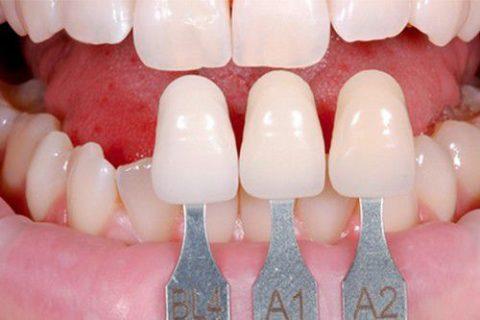 khắc phục răng cửa to