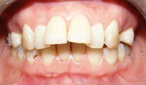 răng cửa to và hô