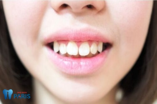 Răng hô nhẹ như thế nào?