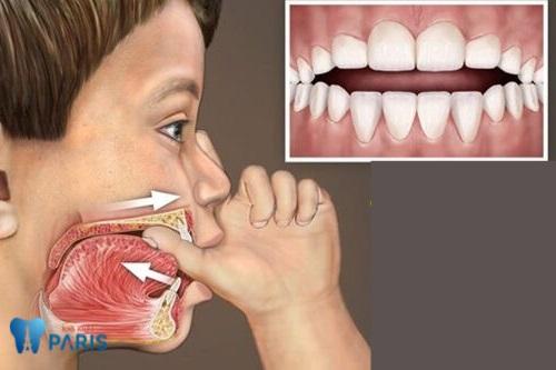Răng vẩu nguyên nhân do đâu