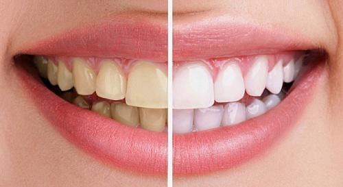 răng xỉn màu