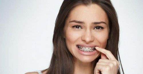 so sánh bọc răng sư và niềng răng