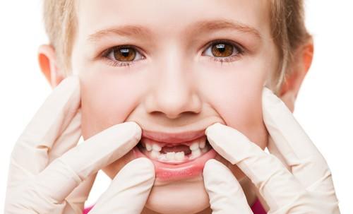 Trẻ bị sún răng