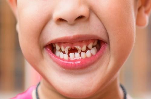 Sún răng do răng thiếu canxi