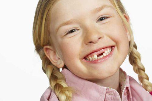 Trẻ thay răng sớm có tốt không?
