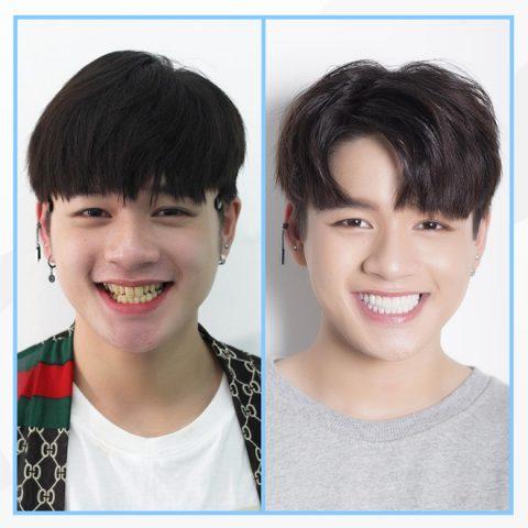 Hàm răng đẹp khiến chàng trai này tự tin hơn hẳn.