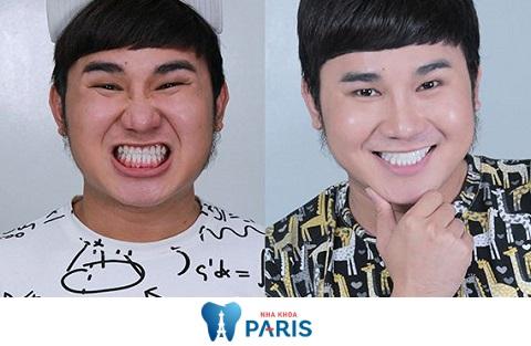 so sánh bọc răng sứ và niềng răng