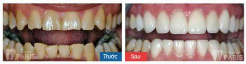 Răng sau bọc sứ cải thiện cả về màu sắc và khắc phục tình trạng viêm tủy cấp.