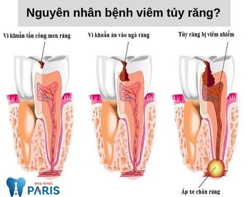 Viêm tủy răng có nguy hiểm không? Nguyên nhân