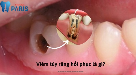 Viêm tủy răng hồi phục là gì?