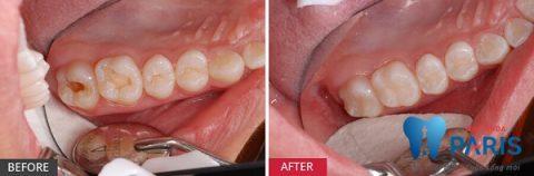 hàn trám răng khi bị viêm tủy răng hồi phục