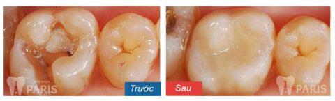 Ca bọc răng sứ để điều trị viêm tủy răng hồi phục điển hình