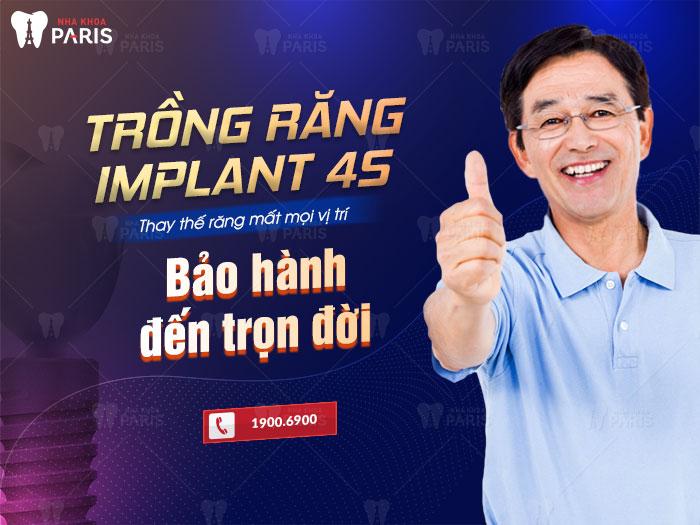 Trồng răng Implant bảo hành đến trọn đời