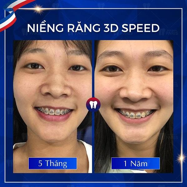 Khách hàng niềng răng tại nha khoa Paris - thay đổi hoàn hảo khi niềng răng