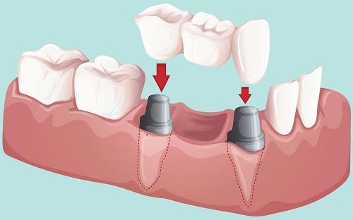 làm cầu răng sứ giá bao nhiêu, làm cầu răng giá bao nhiêu, cầu răng sứ giá bao nhiêu, bảng giá cầu răng sứ