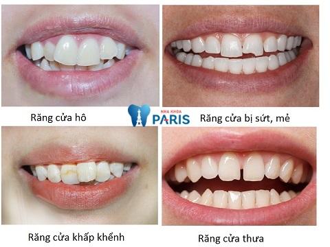 bọc răng sứ 2 răng cửa bị hô