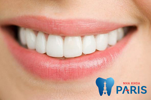 bọc răng sứ 2 răng cửa
