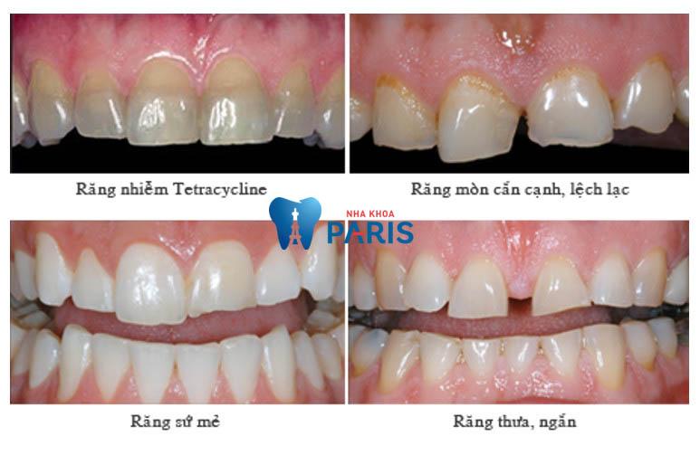 bọc răng sứ cercon có tốt không