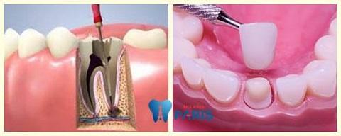 Bọc răng sứ lấy tủy trong trường hợp nào?