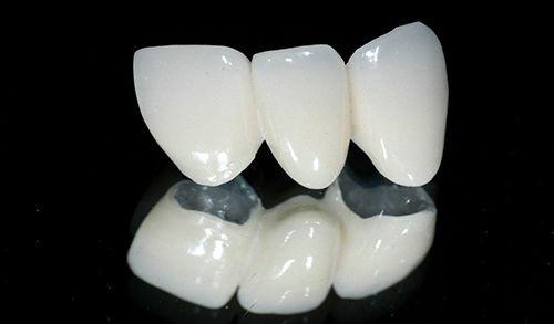 bọc răng sứ giá rẻ