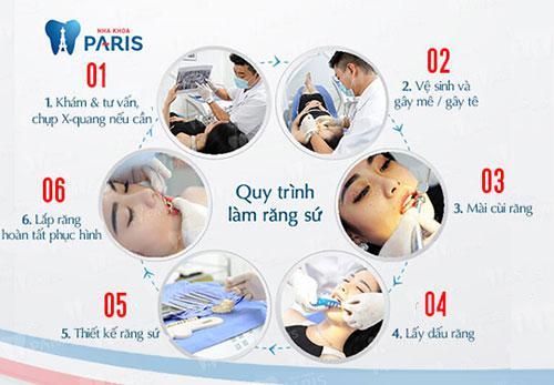 Bọc răng sứ đòi hỏi quy trình nghiêm ngặt.