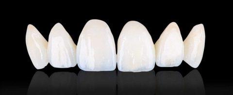 Răng sứ Titan có tuổi thọ trung bình từ 5-7 năm.
