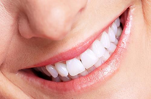 bọc răng sứ 2 răng cửa giá bao nhiêu