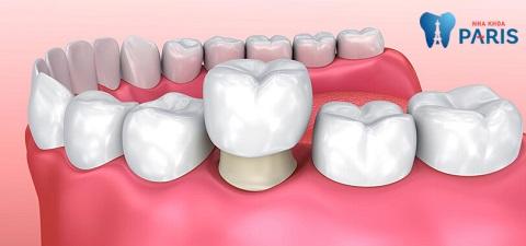 Chụp răng sứ - Giải pháp thẩm mỹ răng hoàn hảo
