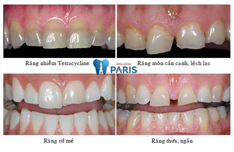 Khắc phục được nhiều trường hợp răng khiếm khuyết