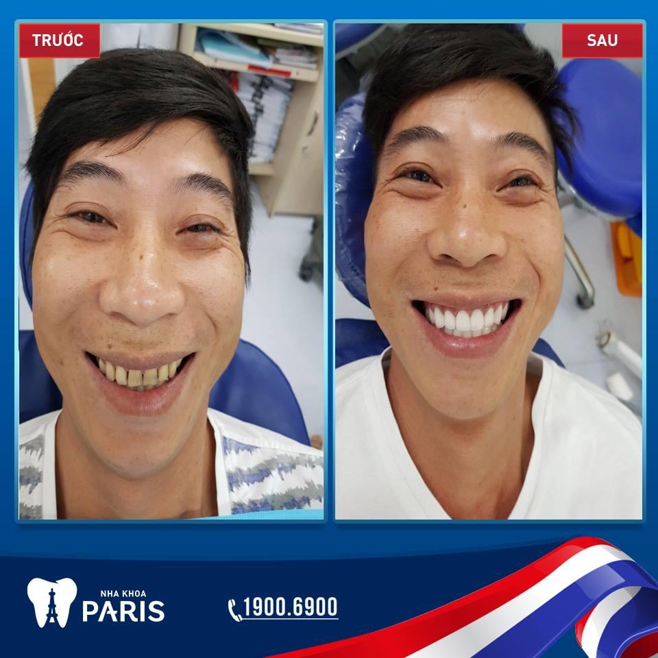Nụ cười tự tin hơn sau khi bọc răng sứ