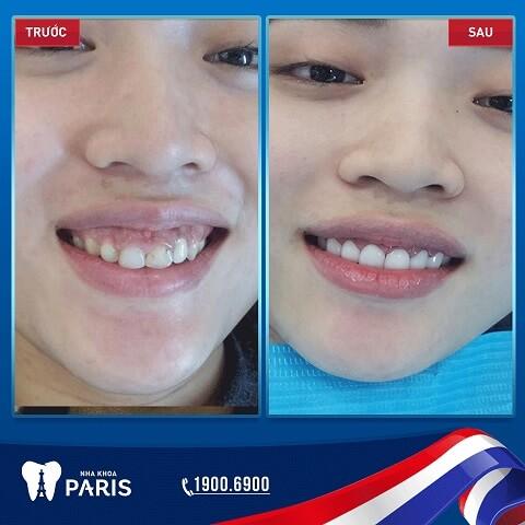 Răng trắng sáng - đều đẹp hơn sau khi phục hình răng sứ thẩm mỹ