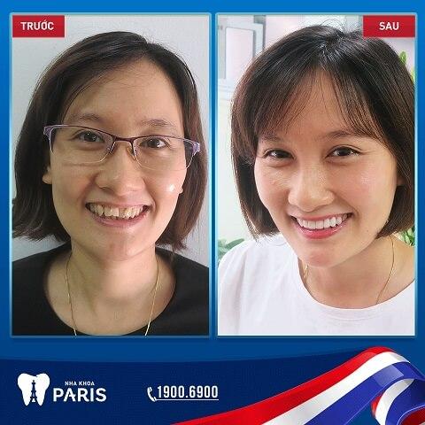 Khuôn mặt trở nên rạng rỡ sau khi phục hình răng sứ tại Nha khoa Paris